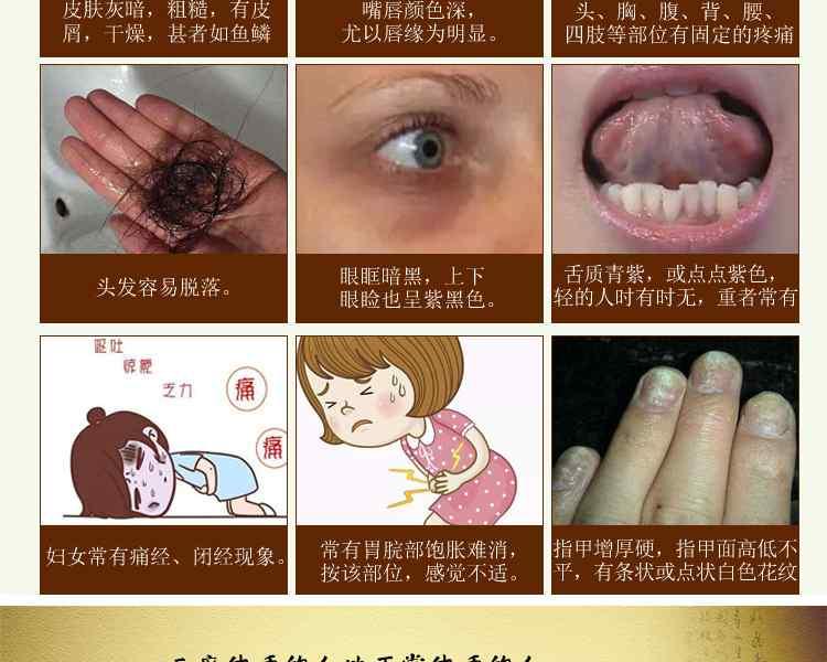 血瘀体质的表现症状及调理方法 血瘀体质的表现症状1