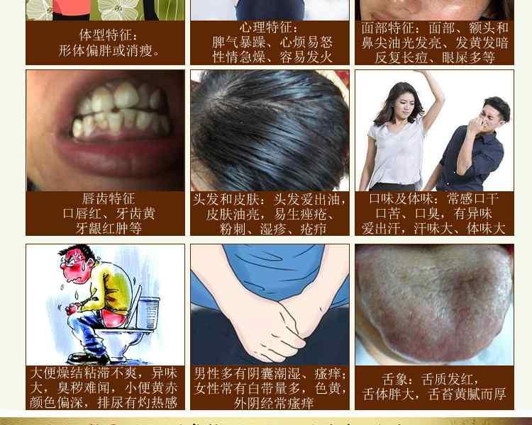 湿热体质的人怎么调理身体 湿热体质的表现症状2