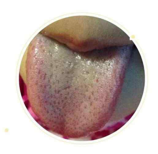 湿热体质的人怎么调理身体 湿热体质舌像.jpg